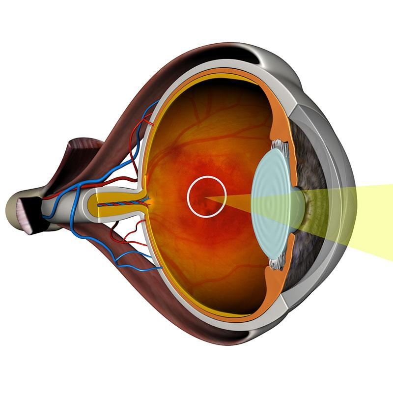 Draper's Wet AMD diagnostic capability is intended to identify those patients who are most likely to benefit from invasive therapies before irreversible damage takes place.